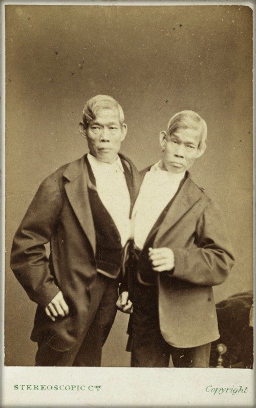 The Siamese Twins, Eng and Chang Bunker, c.1870. Image: scienceandmediamuseum.org.uk.