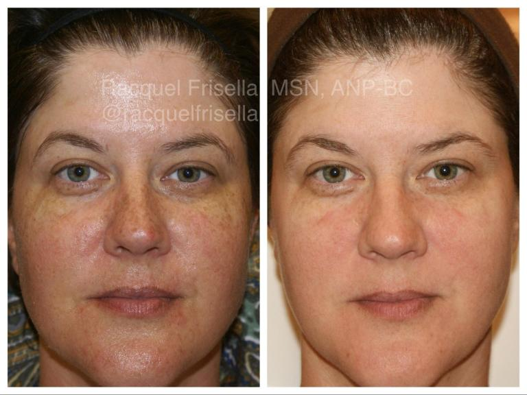 An image of 2 faces of the same person before and after taking Pulsed Light Treatment