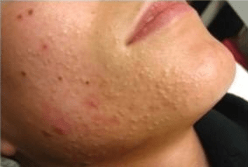 Non-Inflamed Acne