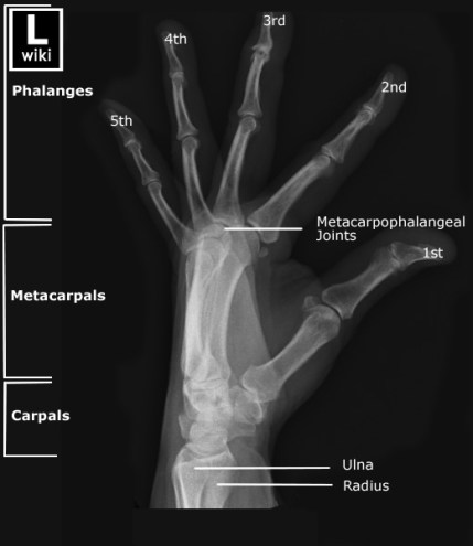 fanned view lateral hand