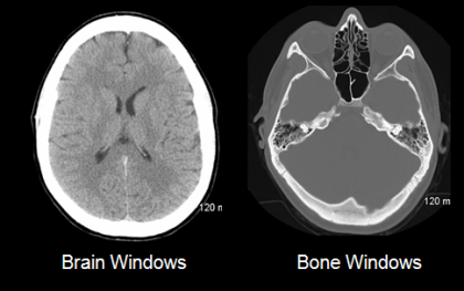 CT_brain_and_bone_windows