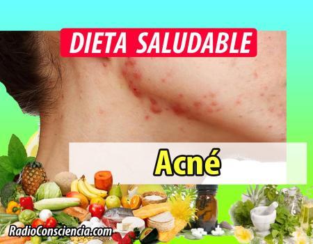 Dieta para Prevenir el Acné