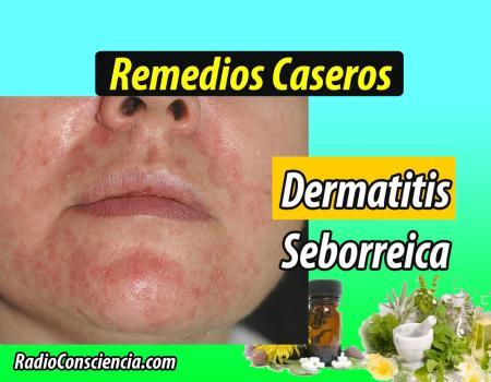 Remedio para la Dermatitis seborreica