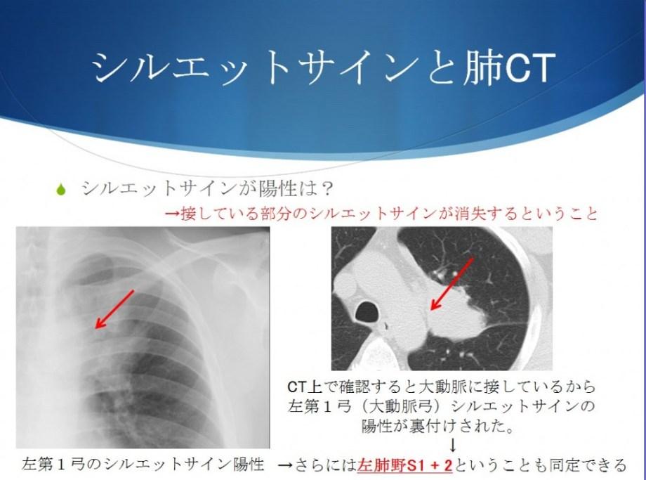 シルエットサインと肺区域をCTですり合わせる