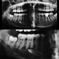 Migración dentaria