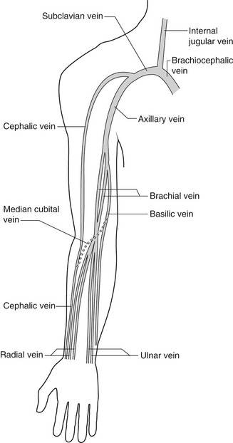Duplex assessment of deep venous thrombosis and upper-limb venous ...