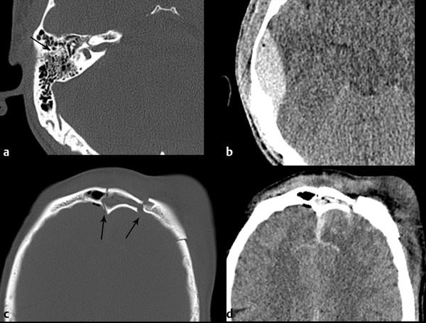 Skull Base Trauma Radiology Key El apelativo clivus, derivado de la palabra latina clivum significa pendiente. skull base trauma radiology key