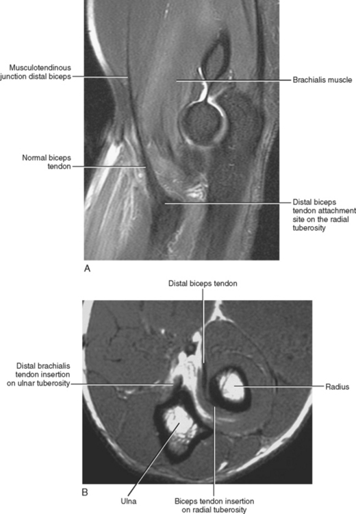 IMAGING OF THE ELBOW | Radiology Key