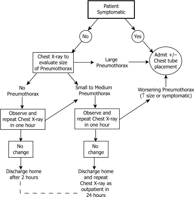 Thoracentesis | Radiology Key