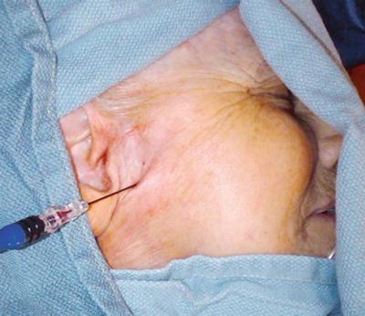 Neural Blockade For Trigeminal Neuralgia Radiology Key