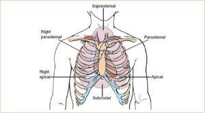 Critical Care Echocardiography | Radiology Key