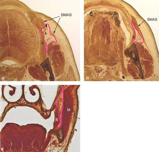 Masticator Space, Buccal Space, and Infratemporal Fossa Masses ...