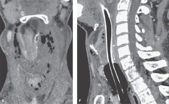 Larynx Acute And Chronic Effects Of Blunt And Penetrating Trauma