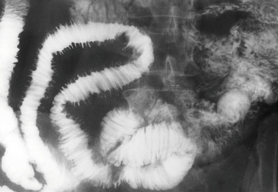 HsuWC1e-ch003-image020