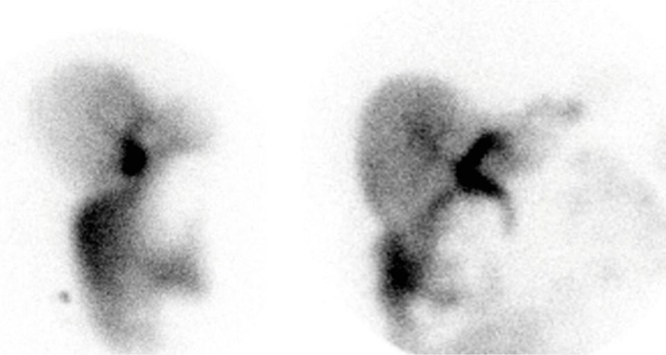 HsuWC1e-ch008-image020d