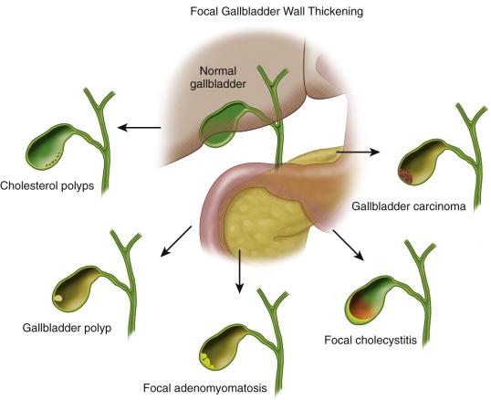 Focal Gallbladder Wall Thickening Radiology Key