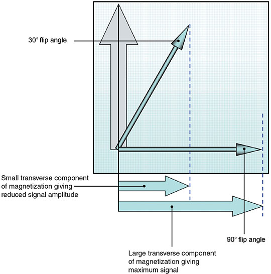 Diagram shows graph on flip angle versus SNR where flip angle is at 30 degree and 90 degree along with small traverse components.