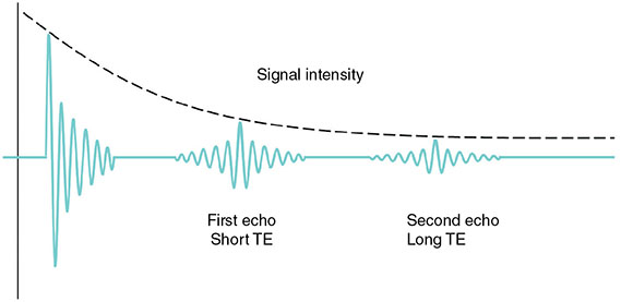 Diagram shows graph with plotting for SNR versus TE where signal intensity decreases from top to bottom with first echo short TE, second echo long TE.