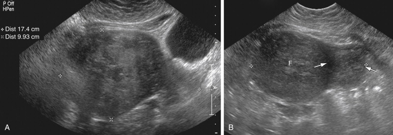 Pitfalls in Gynecologic Ultrasound   Radiology Key