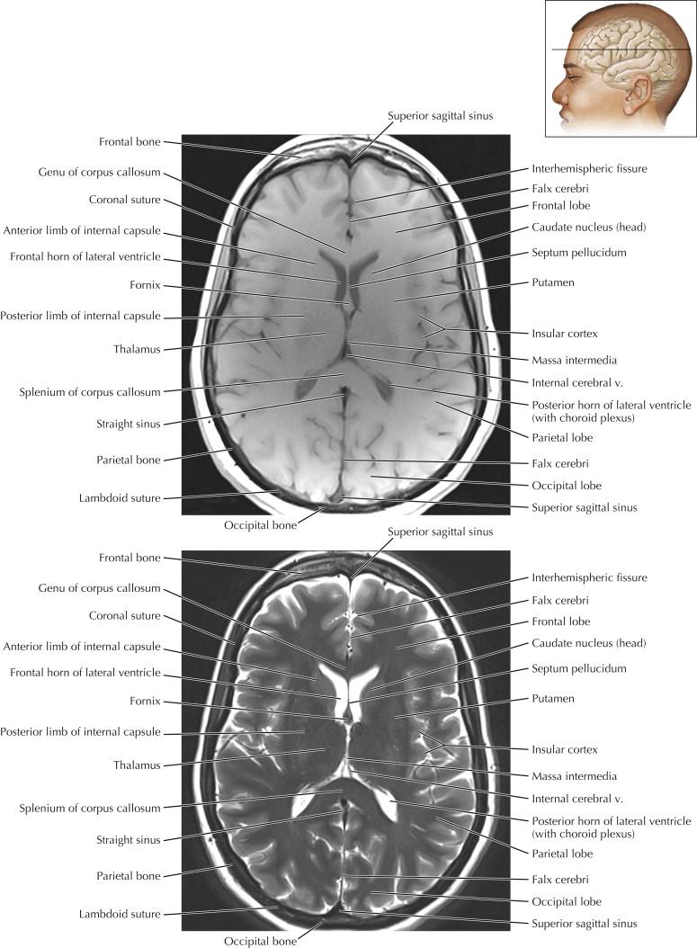 Brain   Radiology Key