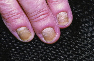 Pulmonary Manifestations of Dermatologic Diseases