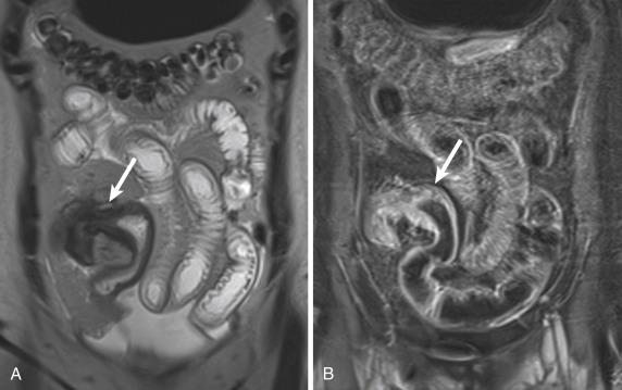 Nontraumatic Abdominal Emergencies | Radiology Key