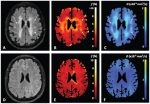 IVIM MRI: A Window to the Pathophysiology Underlying Cerebral Small Vessel Disease