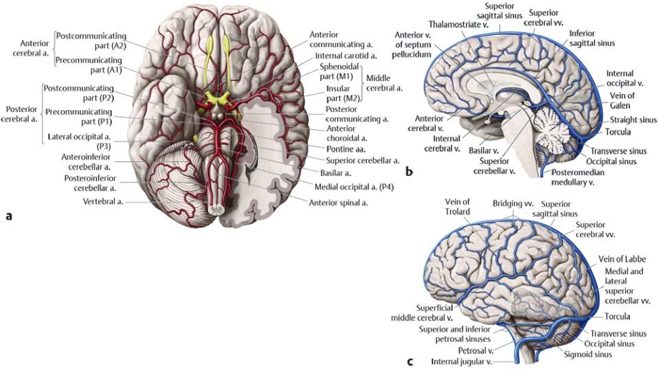 12 Vascular Abnormalities | Radiology Key