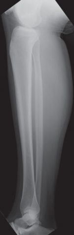 Female Tibia and Fibula
