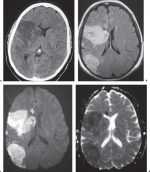 1 Brain and Extra-axial Lesions(Table 1.1 – Table 1.2)