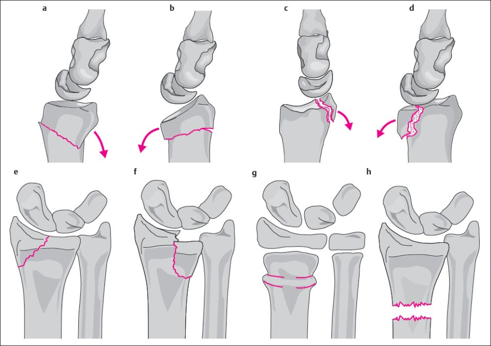 17 Trauma of the Distal Forearm | Radiology Key