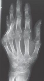 38 Rheumatic Fever (Poststreptococcal Reactive Arthritis)