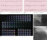 Problem-Oriented Radionuclide Myocardial Perfusion Imaging