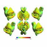 Dorsolateral Prefrontal Cortex (Areas 9, 46)