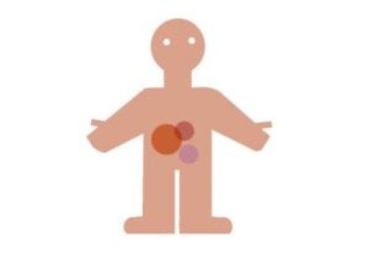Tumores neuroendocrinos: el empeño de hacerlos visibles - neuroendocrino2-300x215