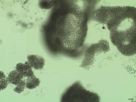 Cianobacterias: otra vez en titulares