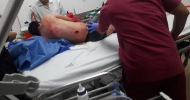 Identificados los responsables de emboscada a policías en Puerto Mestanza