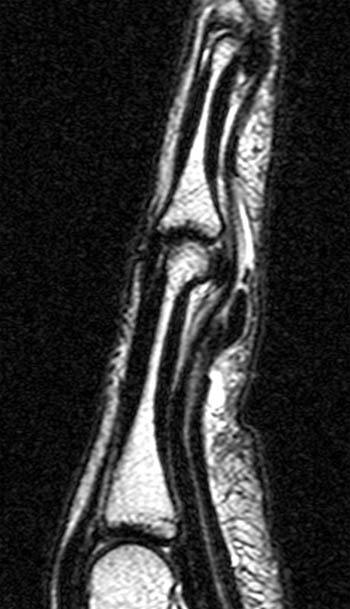 Extensor Laceration Finger Tendon