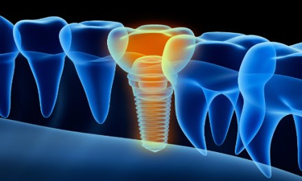 Smart dental implants