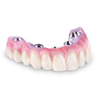Zirconia-Hybrid-Implant-Bridge-feature-circle