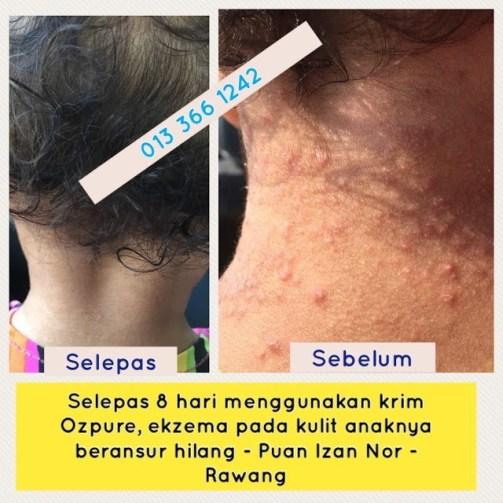 Puan Izan mempunyai anak perempuan yang berumur 3 tahun dan kena sakit eczema sejak umur 2 tahun.