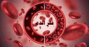اسباب فقر الدم