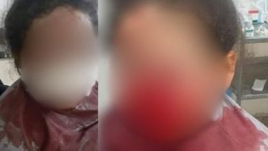 صورة ولاية أمن طنجة تتفاعل مع صورة طفلة على مواقع التواصل الاجتماعي التي تحمل جروحا على مستوى الوجه