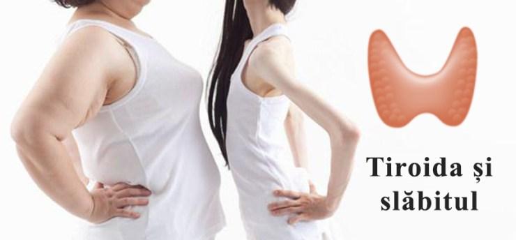nu pot slabi din cauza tiroidei)