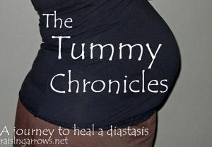 Diastasis Recti Tummy Chronicles