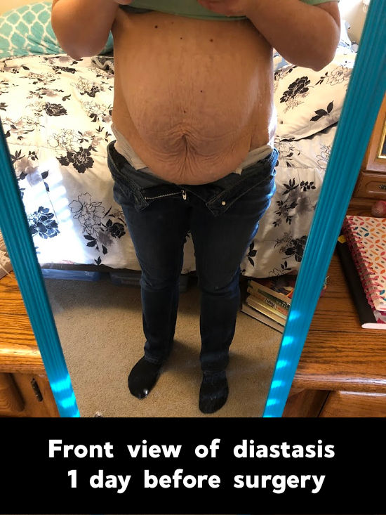 severe diastasis recti with no brace from front view - 1 day before surgery
