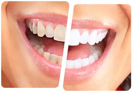 Clareamento dental frequente pode deixar seus dentes mais fracos e sensíveis.