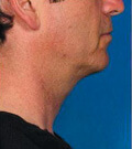 make_before_after_kybella_raleigh_pyle1