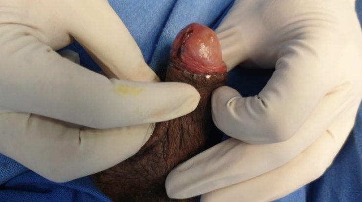Appearence after Stapler ZSR Circumcision by Dr. Raman Tanwar Urologist in Gurgaon