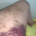 Timeline of a bruise after falling in the bathtub day 3